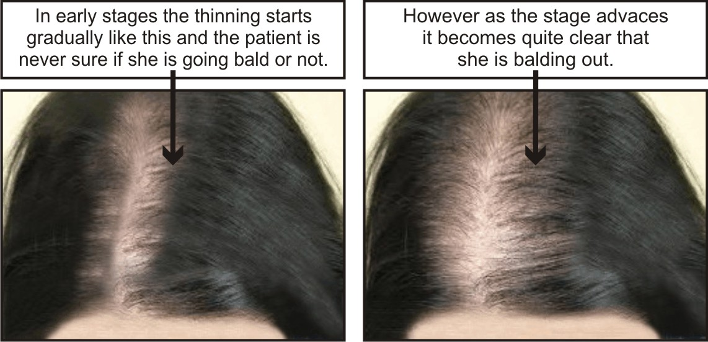 Hereditary Balding Hair Loss 2